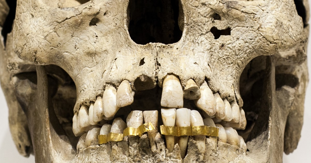 Ancient artificial teeth implant