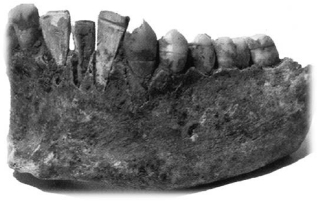 Mayan woman's jaw with artificial teeth